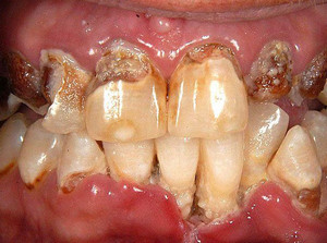 meth mouth picture