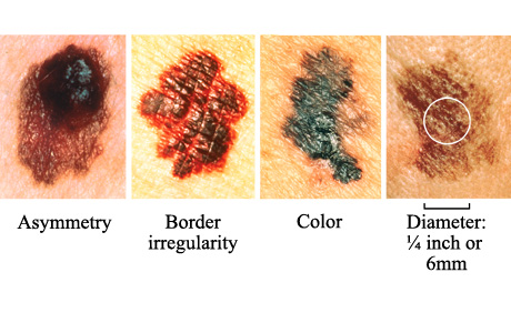 Skin Cancer Causes, Symptoms Treatment