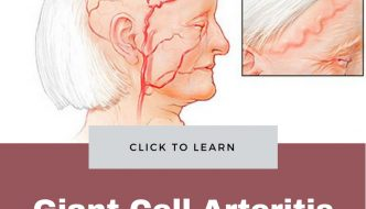 Giant Cell Arteritis : Causes, Symptoms, Treatment and Prevention