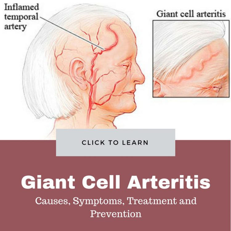 Gіаnt сеll аrtеrіtіѕ Causes and treatment