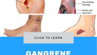 Gangrene : Types, Causes, Symptoms and Treatment