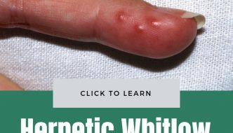 Herpetic Whitlow Picture