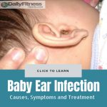 Baby Ear Infection causes treatment