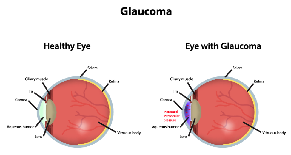 Glaucoma in old people