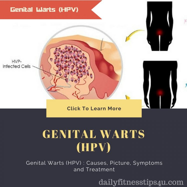Genital Warts (HPV) : Causes, Picture, Symptoms and Treatment