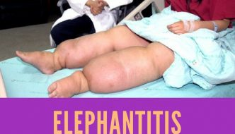 Elephantitis : Causes, Picture, Symptoms and Treatment