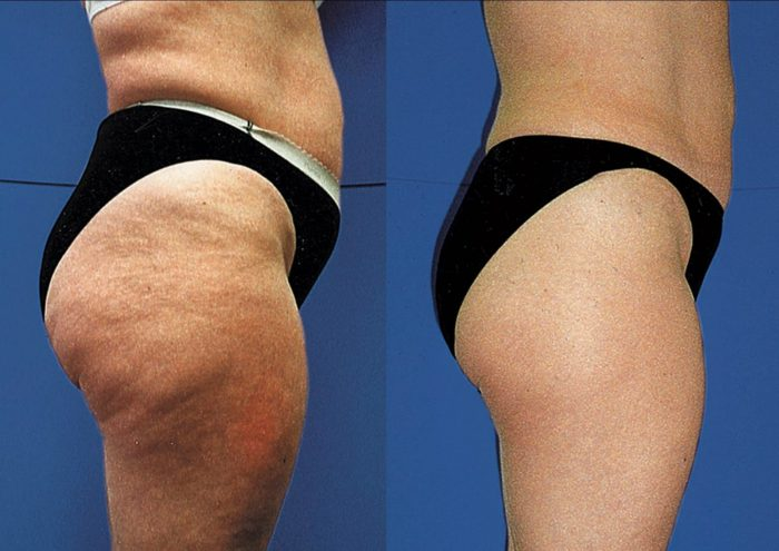 61afa-cellulite-solution