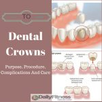 Dental Crown Purpose, Procedure, Complications And Care