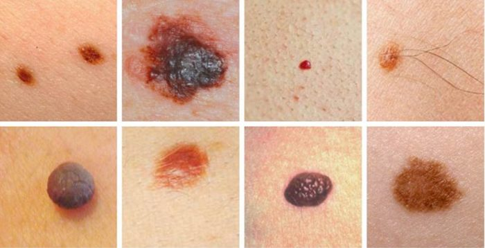 skin-cancer-mosaic