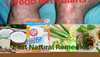 Livedo Reticularis: Causes, Picture, Symptoms and Treatments