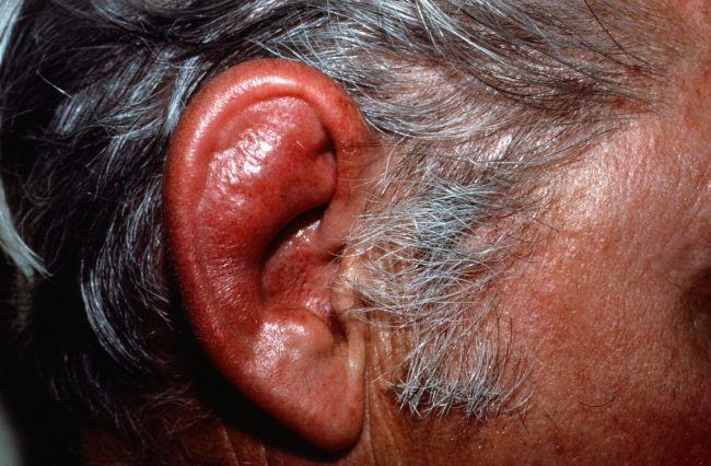 Ears Cartilage Inflammation