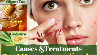 Acne – Definition, Types, Causes, Treatment, Home Remedies