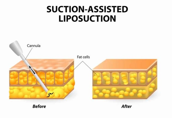 Suction-Assisted Liposuction