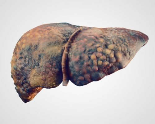 Biliary cirrhosis