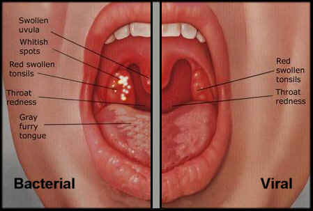 Throat infections