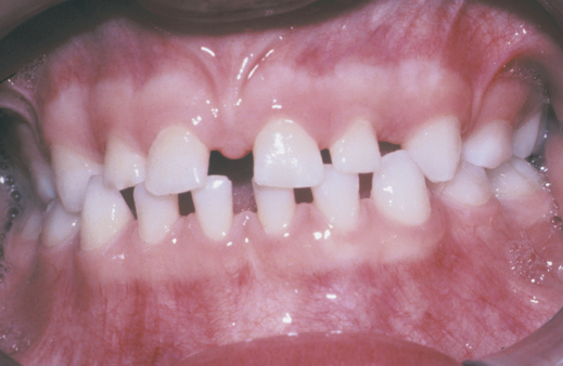 Tooth Abnormalities