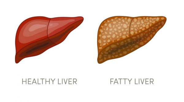 Poor Sleep and Nonalcoholic Fatty Liver Disease