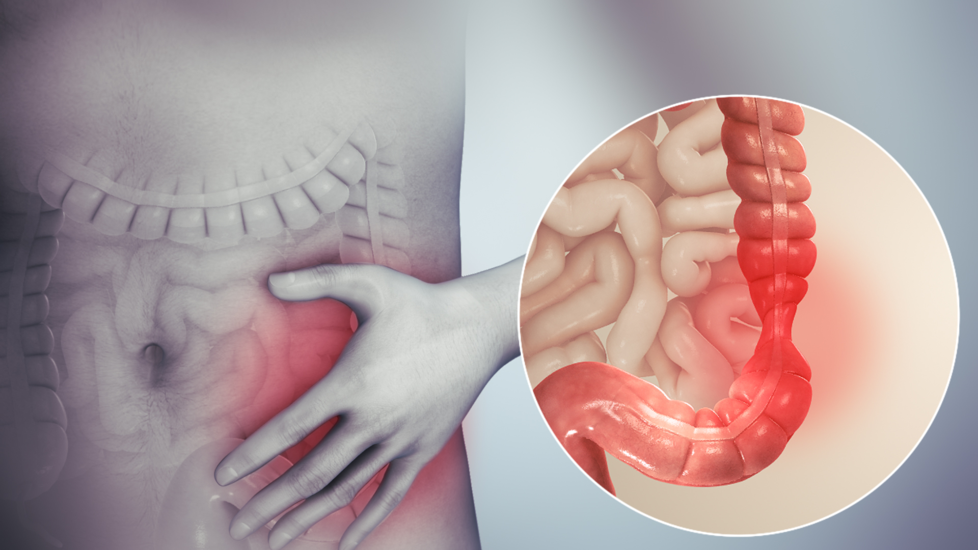 Gastrointestinal bowel syndrome