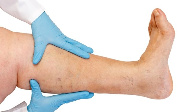 Leg Ulcers: Signs