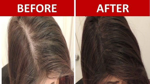 Promote Fast Hair Growth