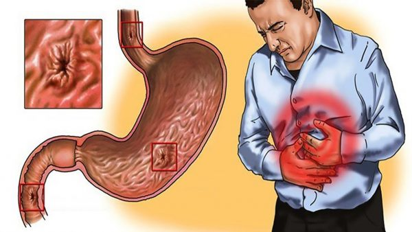 Gastritis: Treatment options