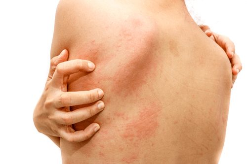 Fight Fungal and Bacterial Infections