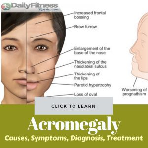 Acromegaly Causes Treatment