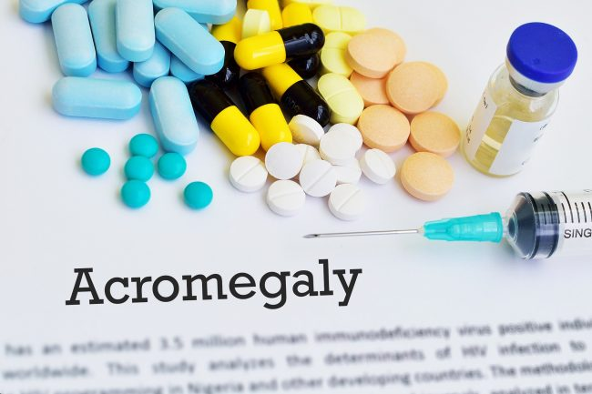Acromegaly Treatment