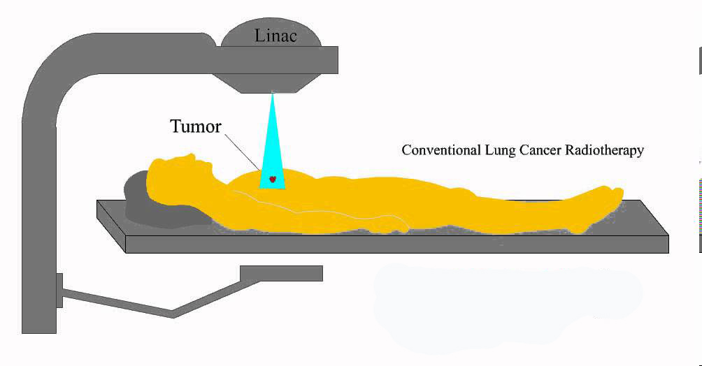 Conventional Radiation Therapy
