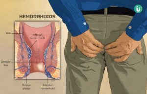 Preventing hemorrhoids