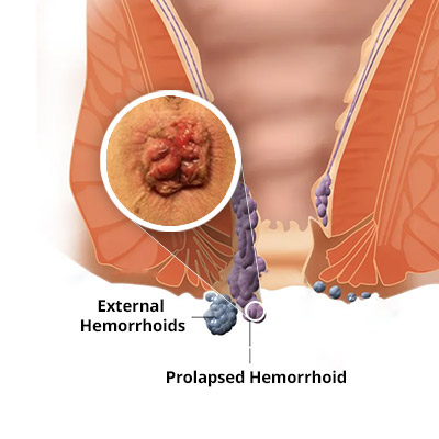 How Long Does Symptoms Hemorrhoid Stay?