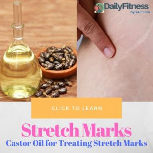 Castor Oil for Treating Stretch Marks